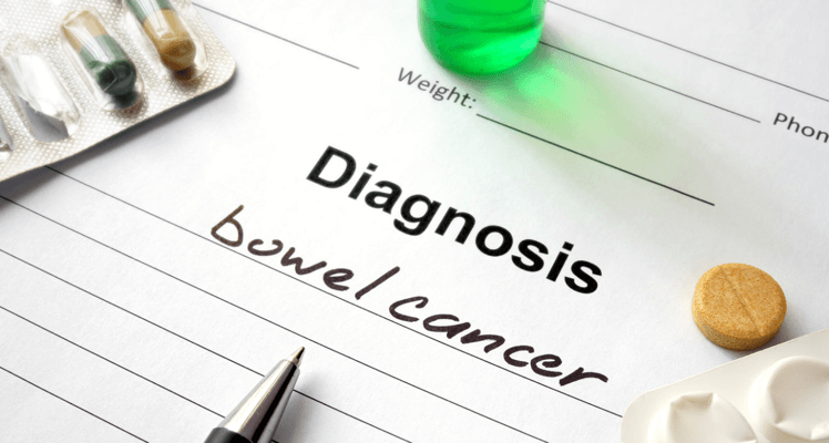 Screening is the best diagnosis for bowel cancer, cancer screening Toowoomba